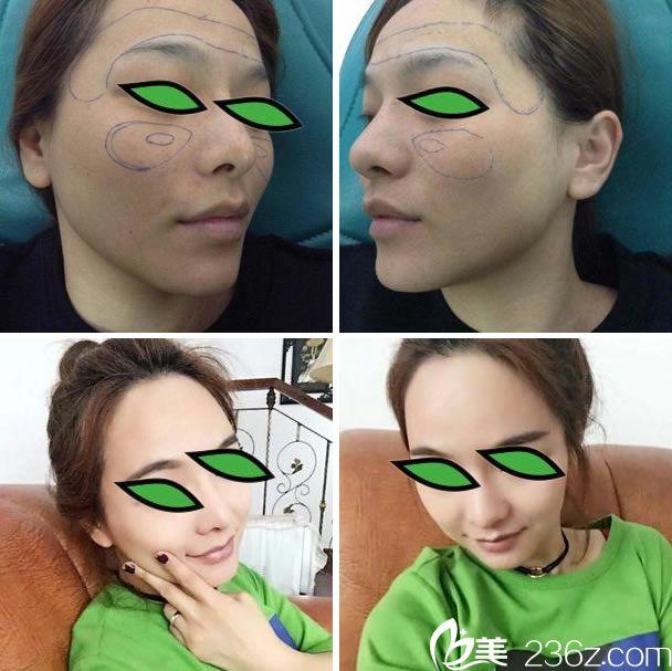 杭州王圣林自体脂肪填充全脸案例