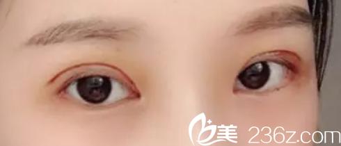 谁敢说我花9800元找淮南华美王海涛做失败双眼皮修复效果不好(附效果图)