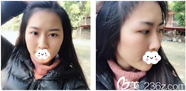 看我找广州有名的倍生植发医院廖骏做的发际线种植效果好不好