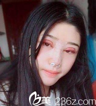 伊美芝双眼皮隆鼻术当天