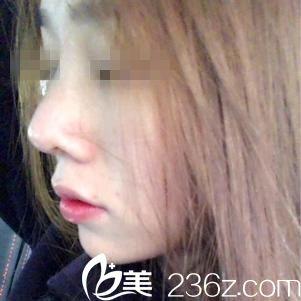 襄阳华美钟磊为我实施鼻综合手术后 终于可以和短鼻子说再见
