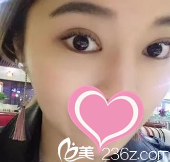 看海南整形医院姚振晟给我做的双眼皮+瘦脸针一个月后变化也太大了吧