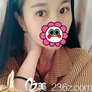 宜昌前卫李传荣院长切开双眼皮+开内眼角1个月恢复详情报告