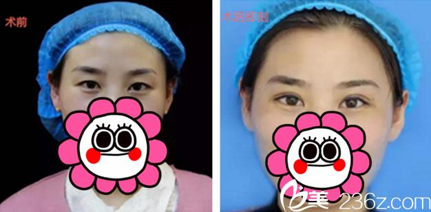 温科磊主任打造的双眼皮案例
