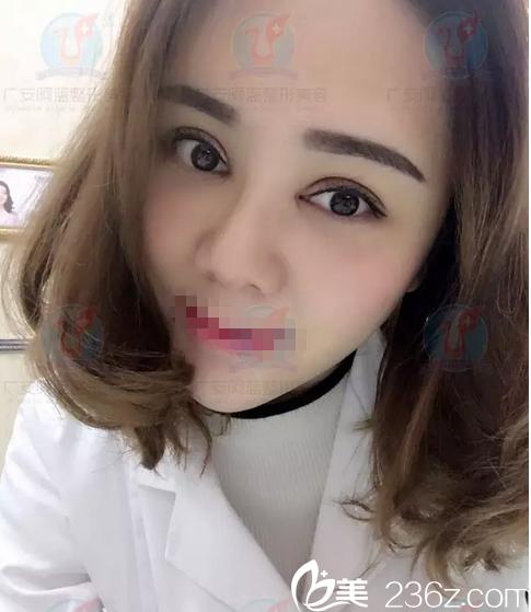 广安阿蓝医院王静眼综合+面部脂肪填充术后15天生活对比照