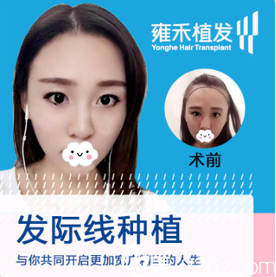 深圳雍禾植发医院周龙飞发际线种植案例效果图