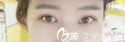 淮南丽人汪金国给我做的全切双眼皮+开眼角术好看不好看(附1到18天恢复图片)