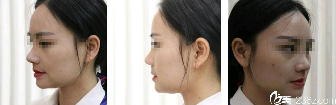 恐惧假体选择常德曹家整形王琳做了鼻中隔软骨隆鼻