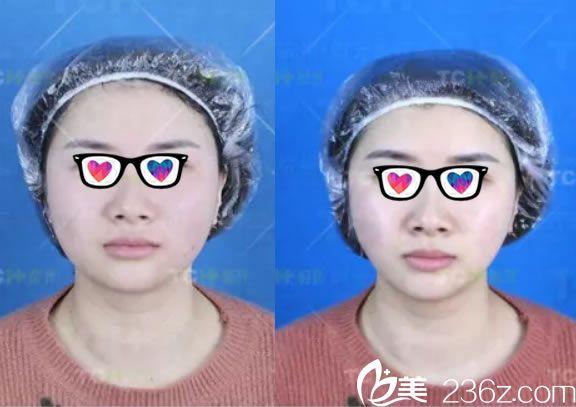 表姐选择杭州时光欧洲之星Fotona 4D做全面部抗衰除皱过程及效果对比图