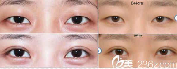 龙岩欧菲韩式全切双眼皮案例