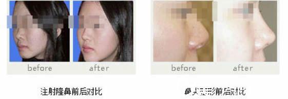 玻尿酸注射隆鼻前后对比效果