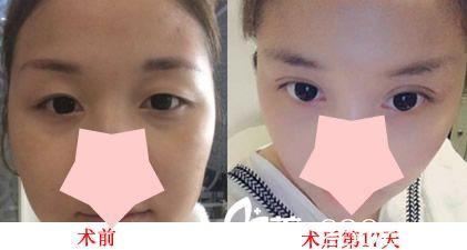 芜湖美人鱼整形怎么样?看双眼皮整形案例对比图