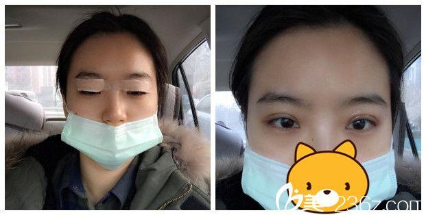 刚做完双眼皮手术