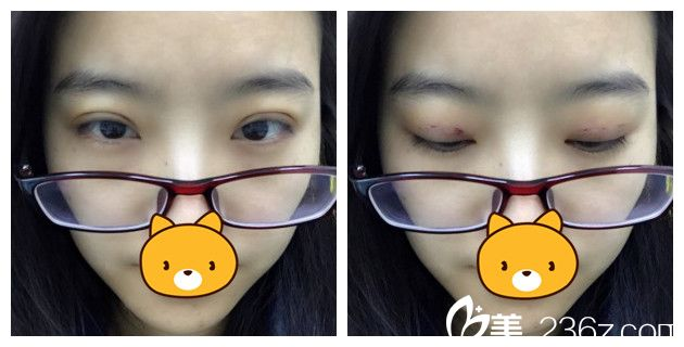 术后五天双眼皮拆线恢复