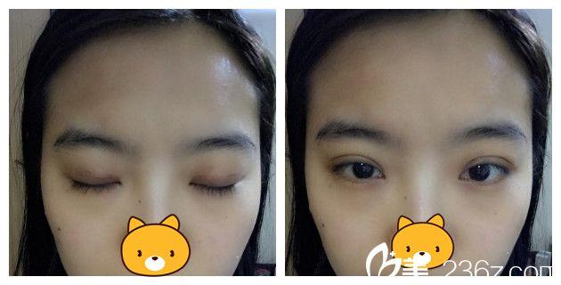找南京明水俞建光医生做韩式三点双眼皮术后一周就恢复效果怎么样