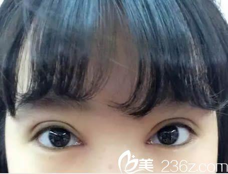 我超级喜欢让龙岩欧菲刘跃辉院长做的切开双眼皮15天恢复效果哦