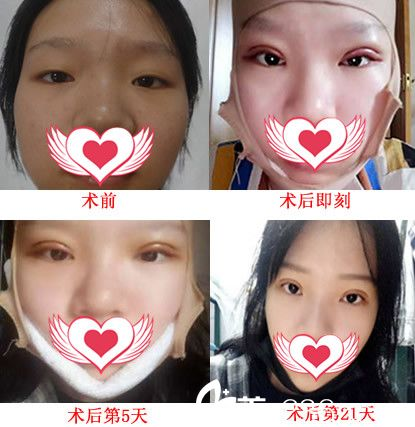 安徽合肥新地整形案例:面颊部吸脂塑形+切开双眼皮21天恢复过程图