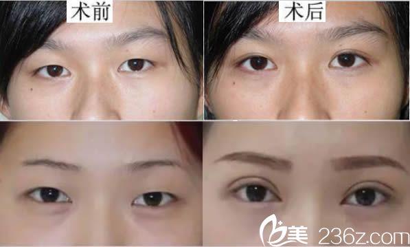 义德医生双眼皮案例对比图