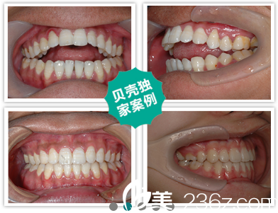 李晓娟医生牙齿矫正案例