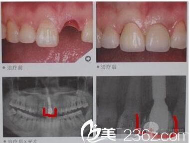 多个种植牙案例推荐专业口腔医院——无锡贝壳口腔
