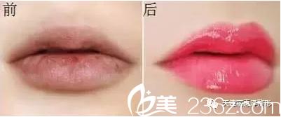 半永久嘴唇化妆术