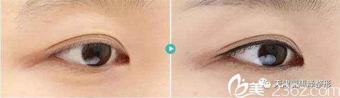 半永久眼线化妆术