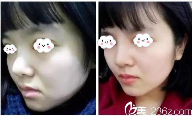想做隆鼻,但面诊南京熙而美医生后建议选择鼻综合果然术后更惊艳