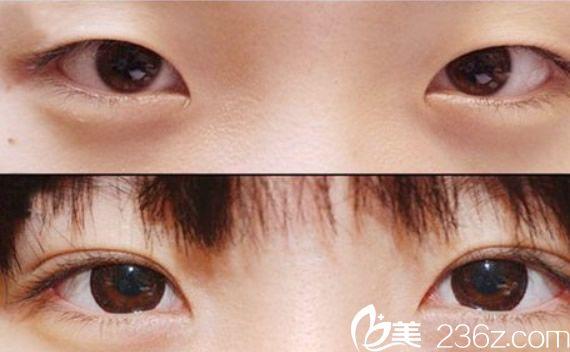 双眼皮整形前后效果对比