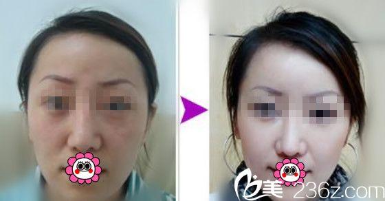 面部除皱效果案例