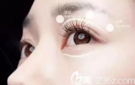 四平王清纯整形医院双眼皮手术