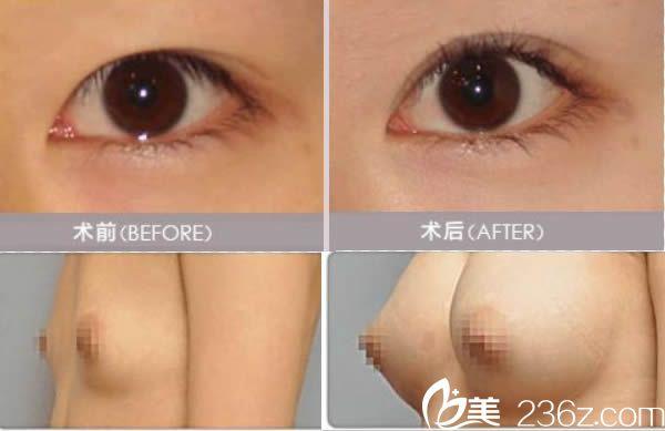 宁德华美双眼皮和假体隆胸案例