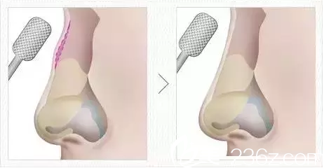 驼峰鼻:鼻骨整形