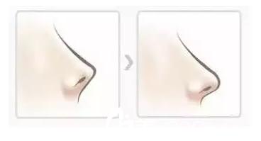朝天鼻:鼻尖延长术