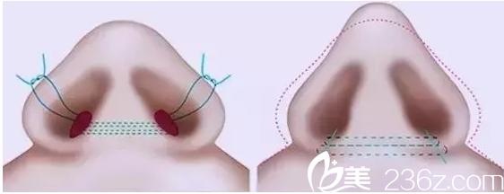 鼻翼肥厚:鼻翼整形术