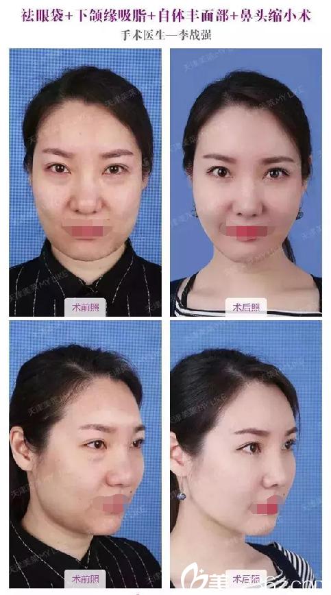 袪眼袋+下颌缘吸脂+自体丰面部+鼻头缩小术