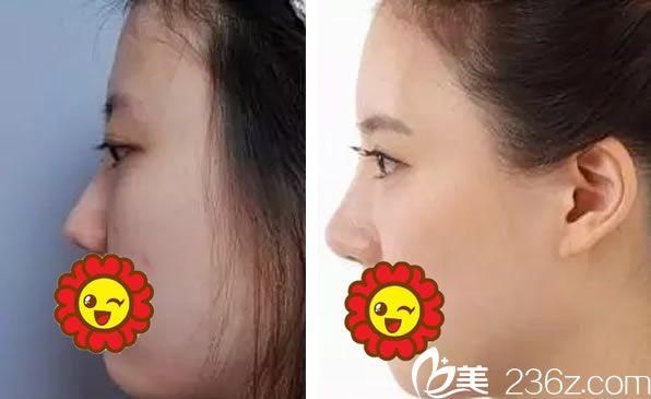杭州维多利亚假体隆鼻案例