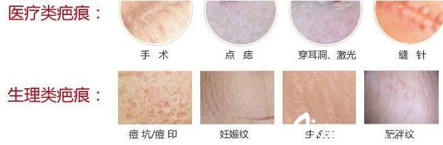百色右江民族医学院附属医院整形科可以去除的疤痕