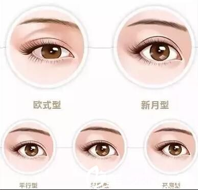 四平王清纯整形医院怎么样?双眼皮手术9800元起塑造美眼