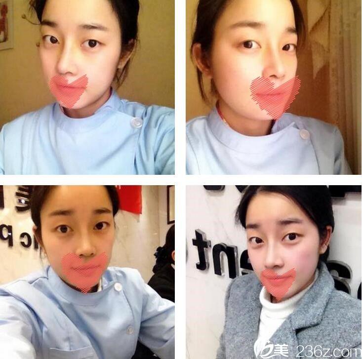 长沙希美蒋松林给我做的鼻综合6个月后弧度满分