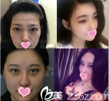 北京米扬丽格医疗美容医院部分案例