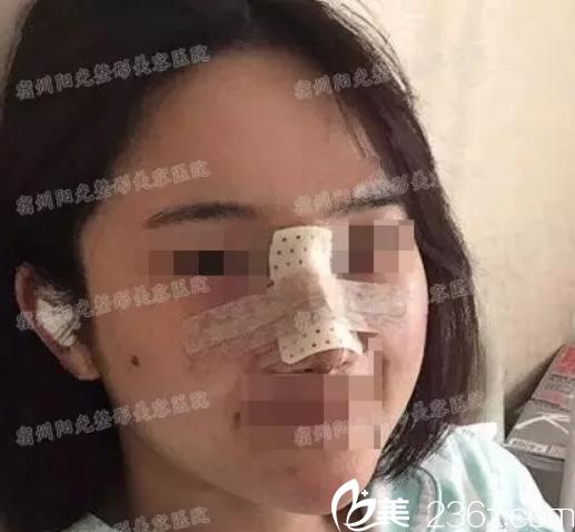宿州阳光整形美容医院院长蒋相锋做综合隆鼻术后第二天样子
