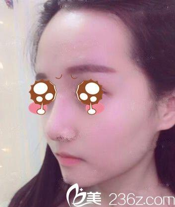 新乡美天医疗美容医院刘战辉术后照片1