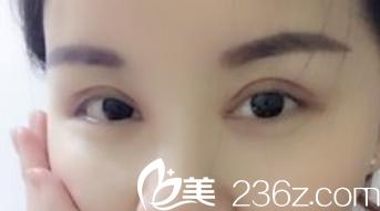 许飞割双眼皮+开内眼角术后第33天效果图