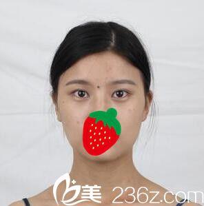 上海复丽医疗美容门诊部蒋淼全切双眼皮真人案例图1