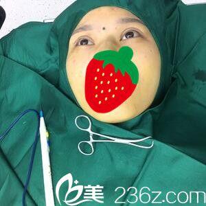 上海复丽医疗美容门诊部蒋淼全切双眼皮真人案例图2