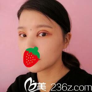 上海复丽医疗美容门诊部蒋淼全切双眼皮真人案例图3