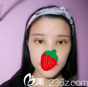 上海复丽医疗美容门诊部蒋淼全切双眼皮真人案例图4