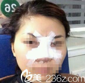 滁州伊美尔沈干做鼻综合整形术后即刻照片