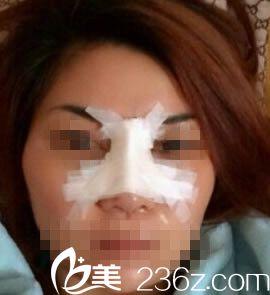 沈干做鼻综合整形术后第三天恢复情况