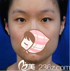 上海原辰医疗美容医院朴原辰术前照片1